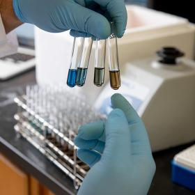 A researcher holding test tubes of different colors containing biomarkers
